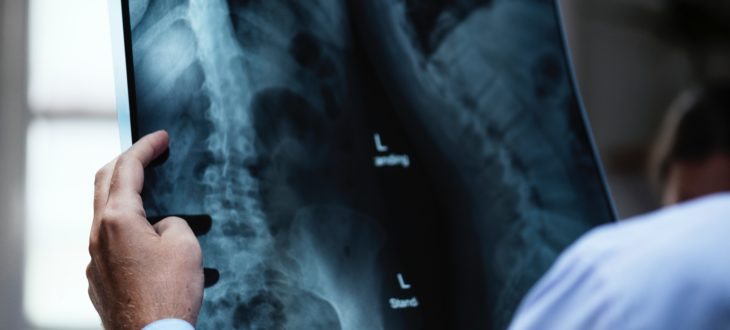 backbone-blur-check-721166
